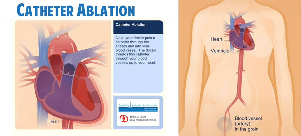 Catheter Ablation