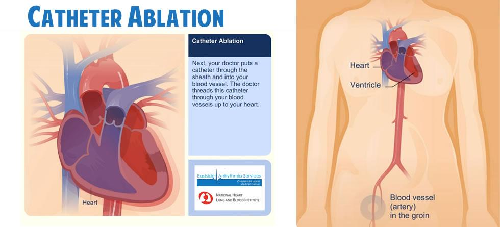 Catheter Ablation